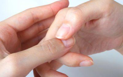 自爪のイメージ